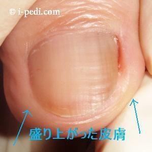 巻き爪の原因 両脇の盛り上がった皮膚